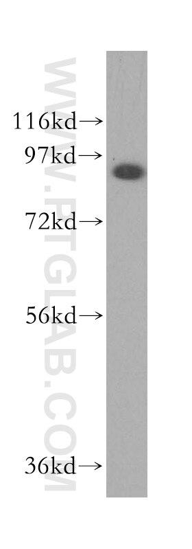 WB analysis of HepG2 using 17492-1-AP