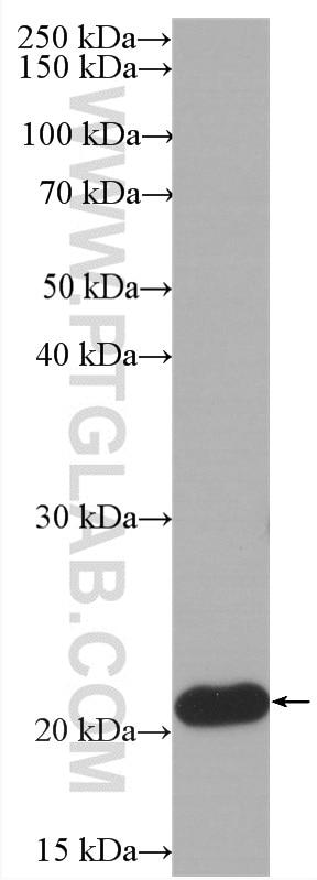 WB analysis of Jurkat using HRP-60301