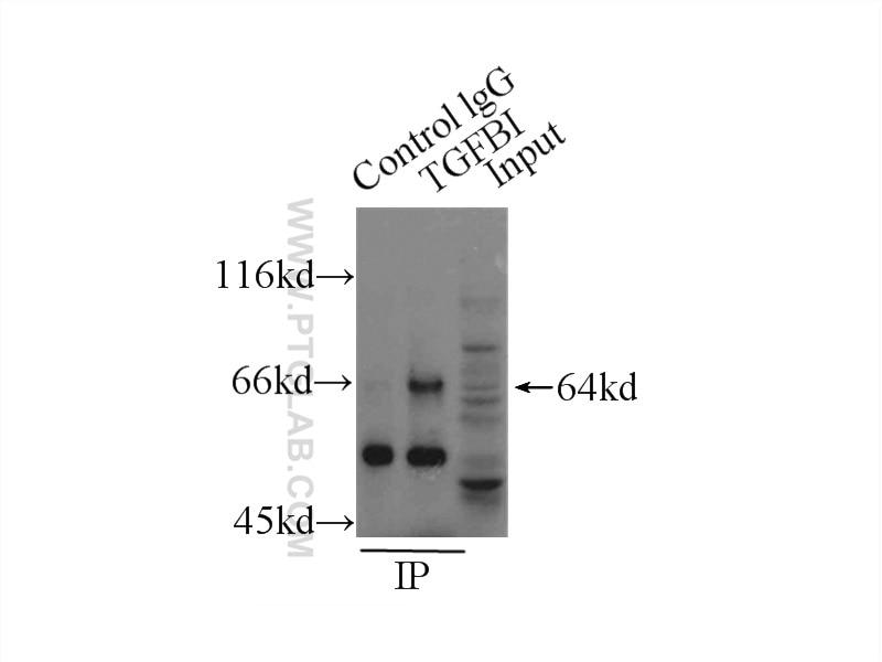 IP experiment of HeLa using 10188-1-AP