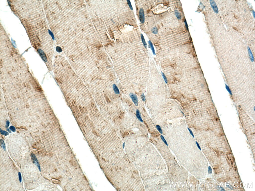 IHC staining of mouse skeletal muscle using 14647-1-AP