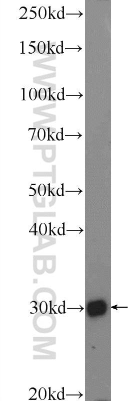 WB analysis of MCF-7 using 16096-1-AP