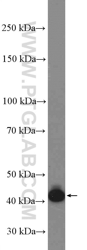 BSAP,PAX5 Polyclonal antibody