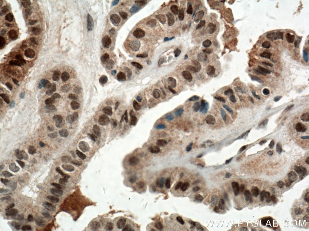 IHC staining of human thyroid cancer using 14879-1-AP