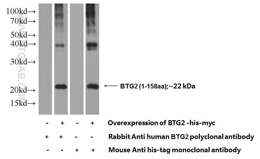 BTG2 Polyclonal antibody