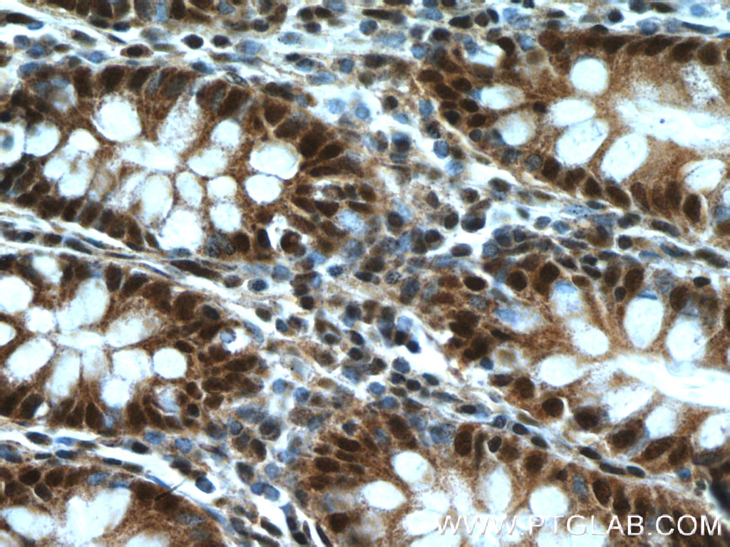 IHC staining of human colon using 27073-1-AP