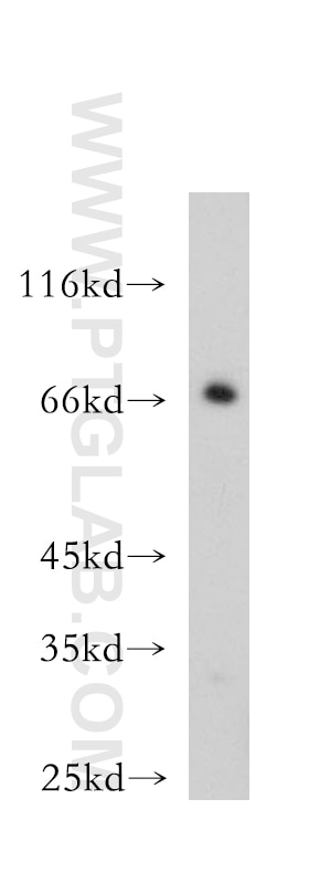 WB analysis of mouse skeletal muscle using 12920-1-AP