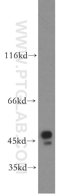 WB analysis of MCF-7 using 19917-1-AP