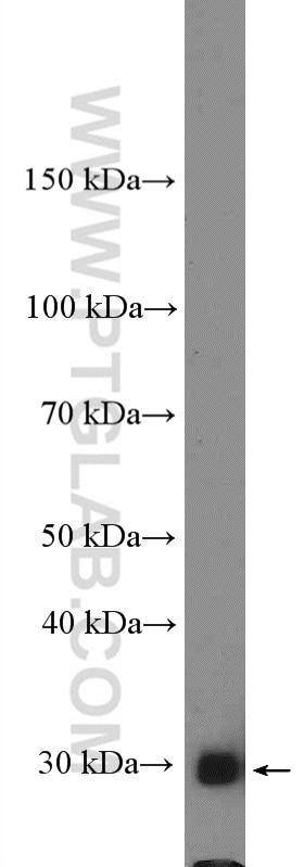 Bcl-XL