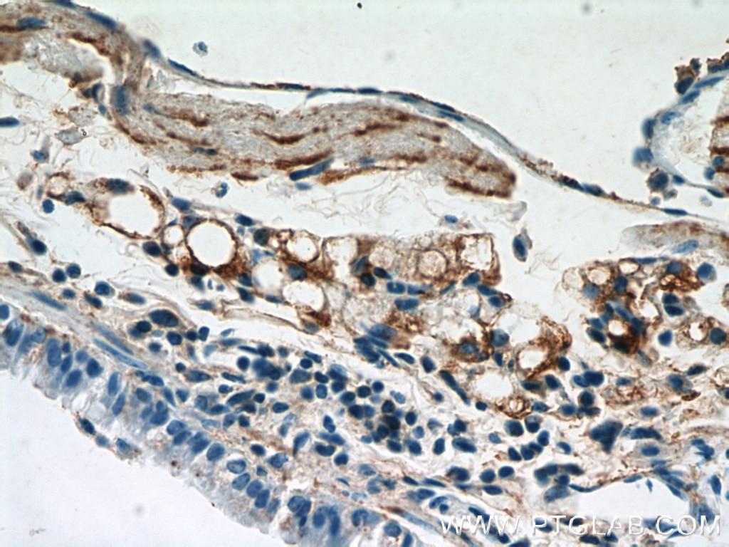 Osteocalcin Polyclonal antibody