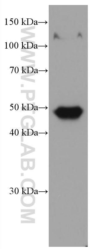WB analysis of pig skin using 67275-1-Ig