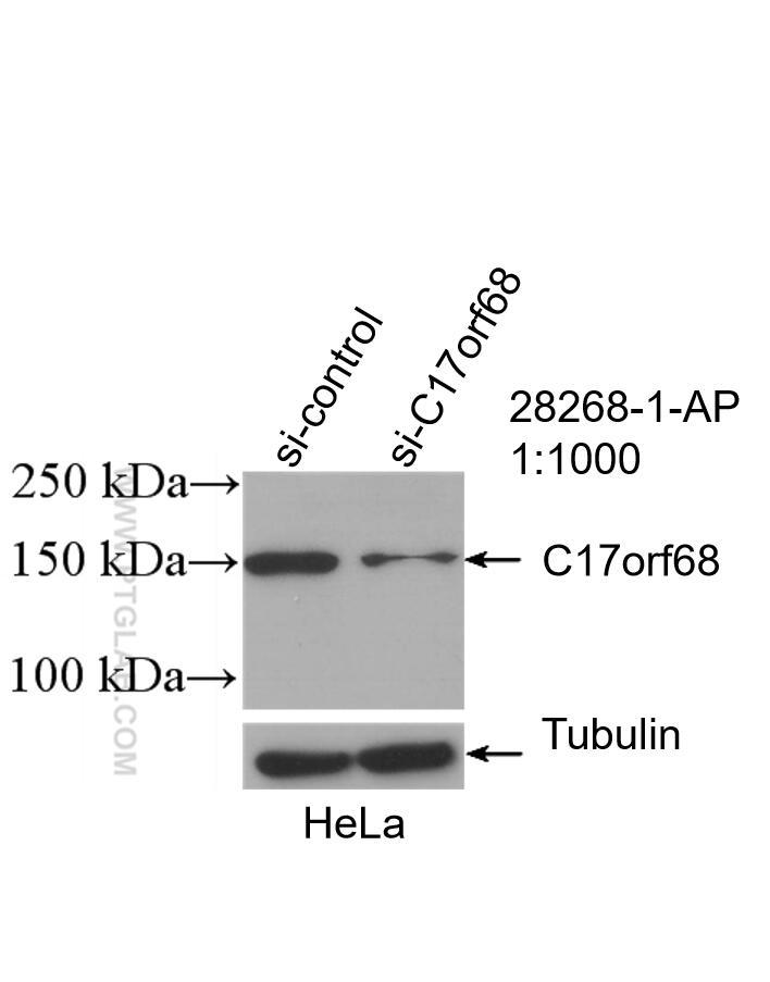 WB analysis of HeLa using 28268-1-AP