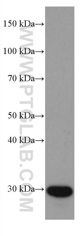 WB analysis of human plasma using 67063-1-Ig