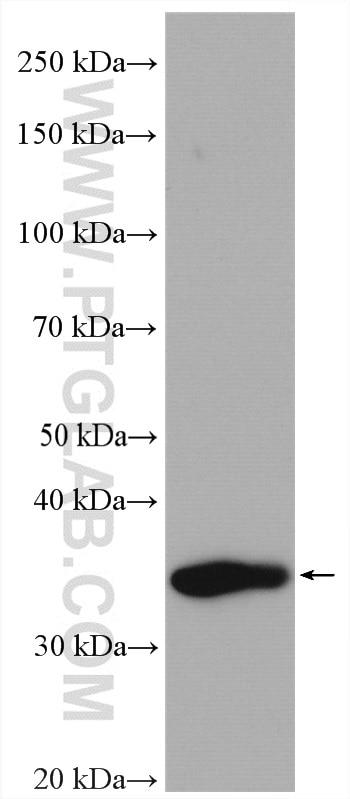 C22orf25 Antibody 27846-1-AP   Proteintech