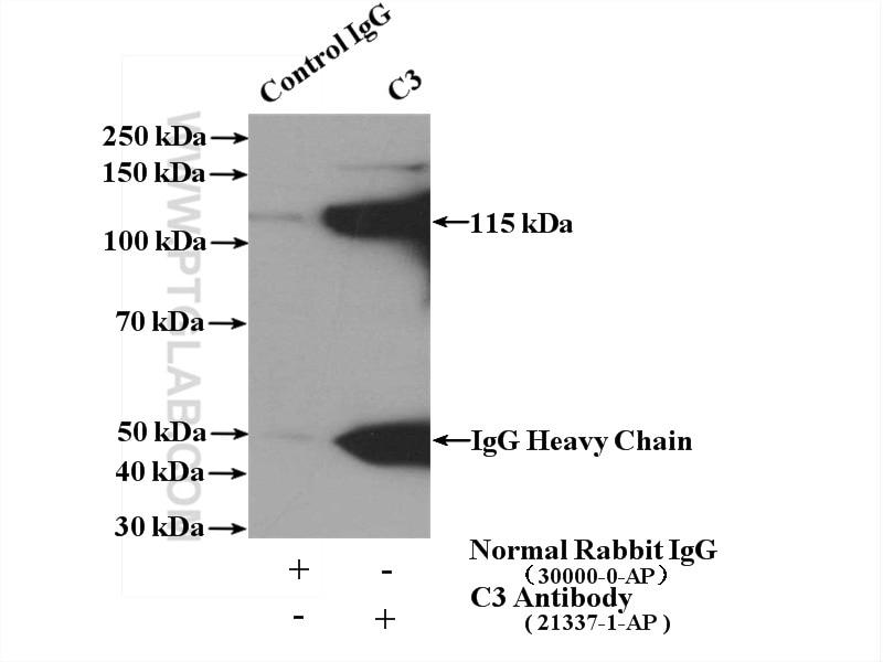 IP experiment of human plasma using 21337-1-AP
