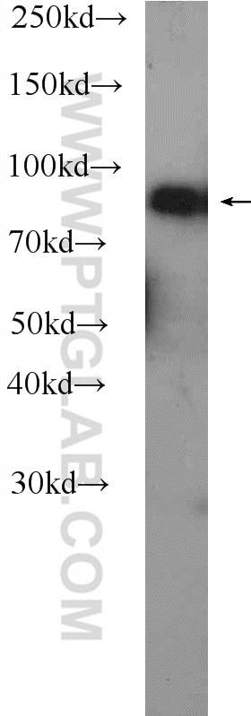 WB analysis of human blood using 22233-1-AP