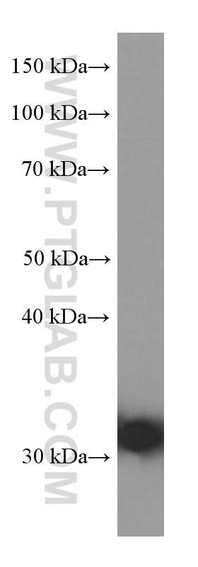 WB analysis of human plasma using 66242-1-Ig