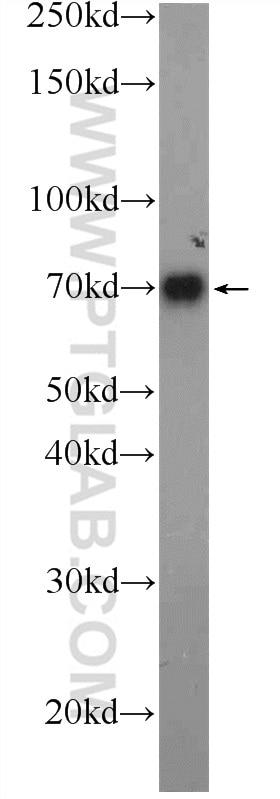 WB analysis of human blood using 11819-1-AP