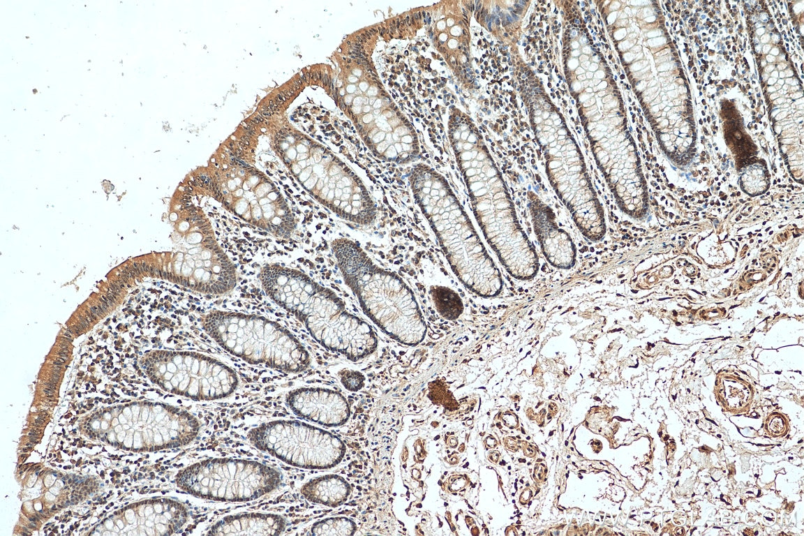 IHC staining of human colon cancer using 26416-1-AP