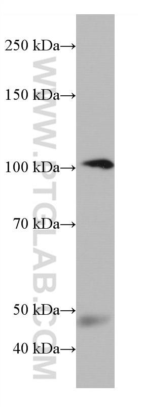 WB analysis of human plasma using 66908-1-Ig