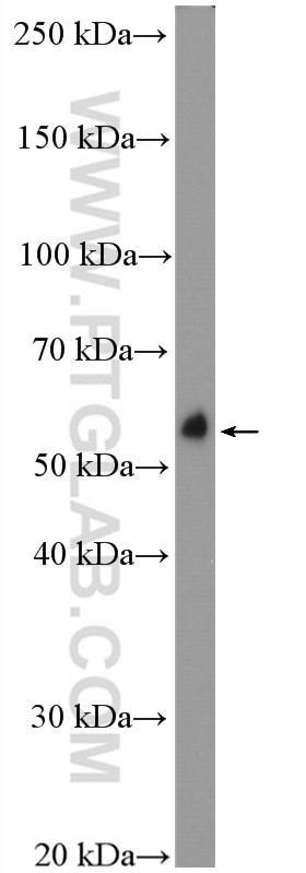 WB analysis of rat brain using 22637-1-AP