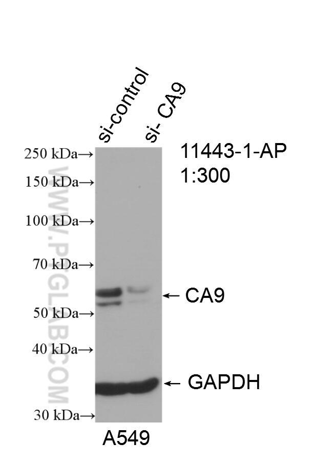 WB analysis of A549 using 11443-1-AP
