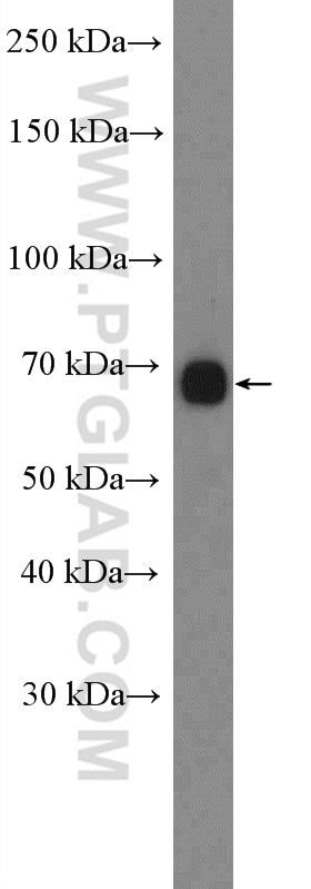CACNB1 Polyclonal antibody