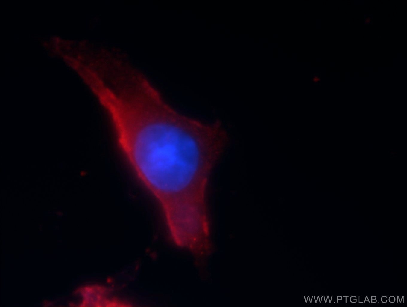 IF Staining of SH-SY5Y using 18389-1-AP