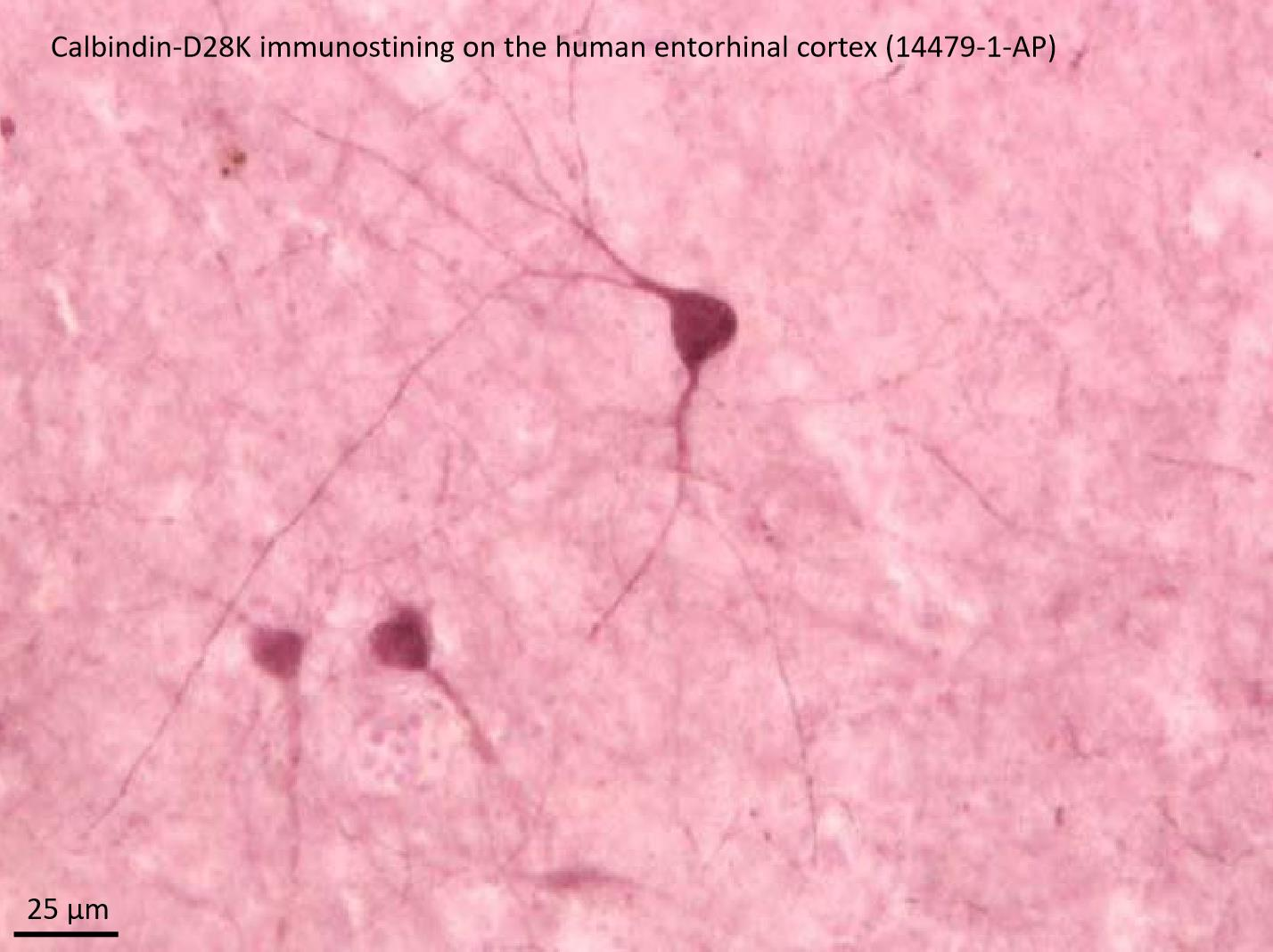 IHC staining of hippocampus using 14479-1-AP