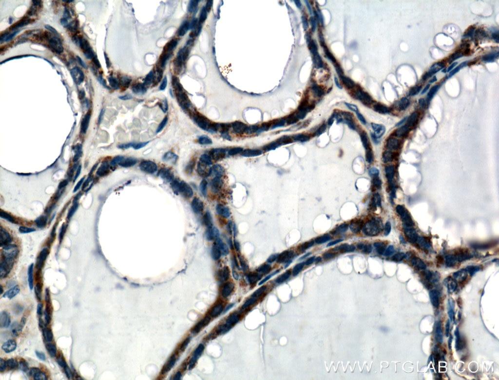 IHC staining of human thyroid using 10292-1-AP