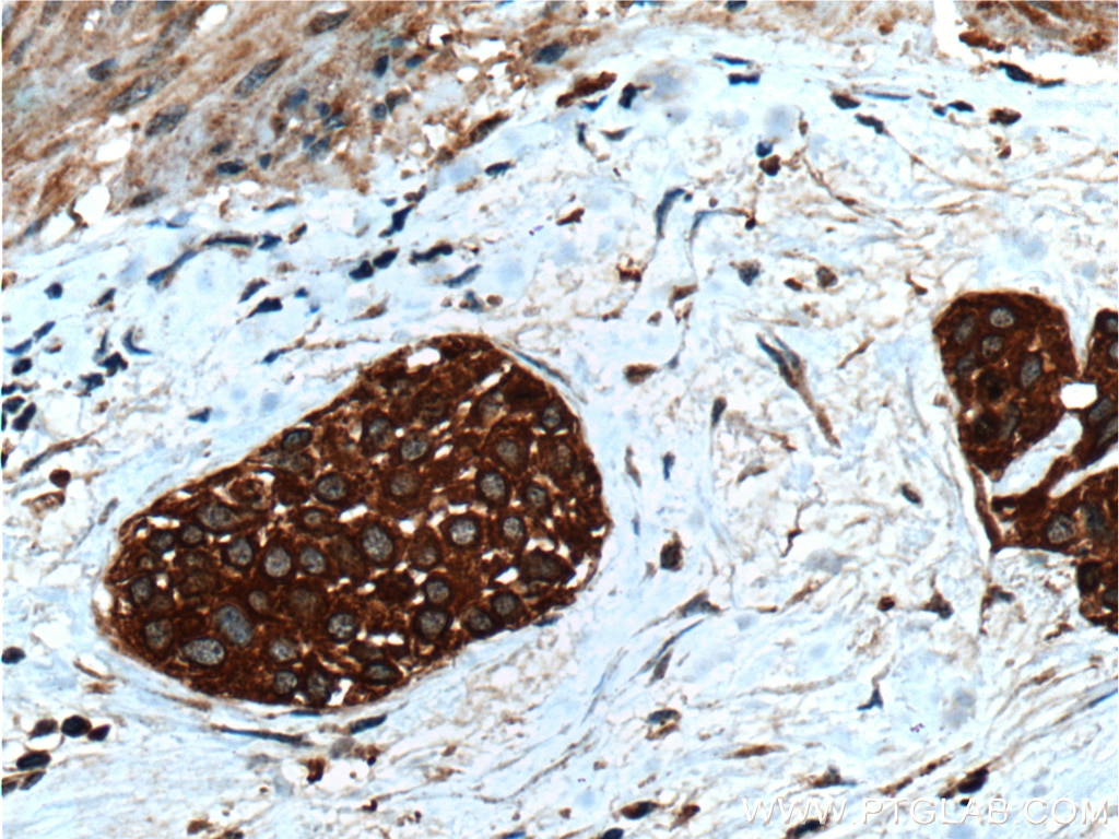 IHC staining of human urothelial carcinoma using 10538-1-AP