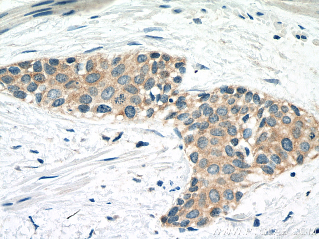 IHC staining of human urothelial carcinoma using 67732-1-Ig