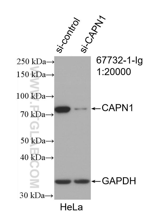 WB analysis of HeLa using 67732-1-Ig