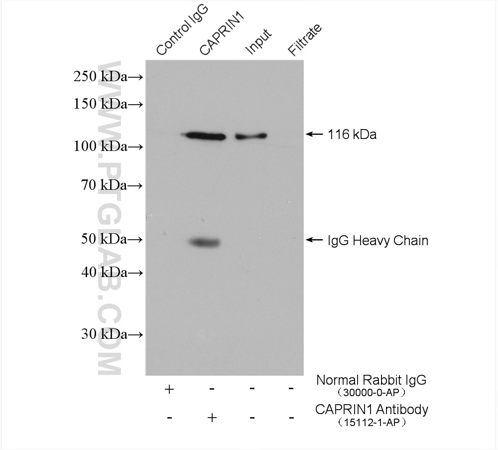 IP experiment of HeLa using 15112-1-AP