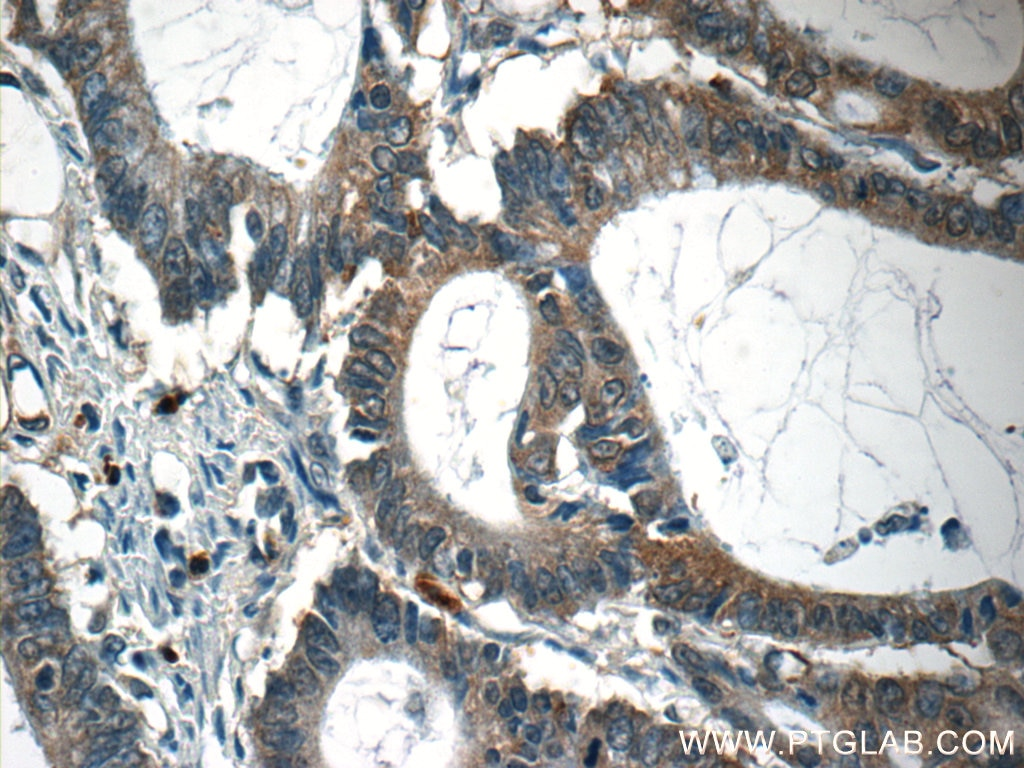 IHC staining of human colon cancer using 55145-1-AP