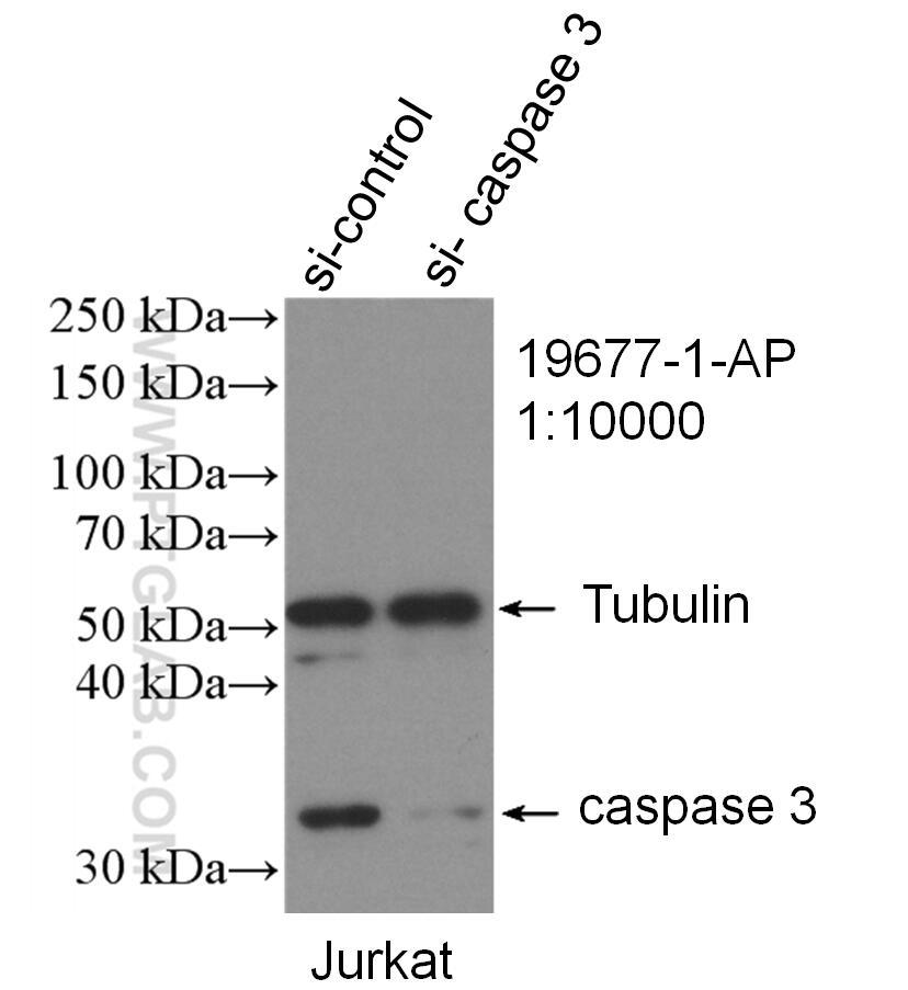 WB analysis of Jurkat using 19677-1-AP