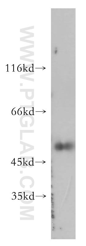 WB analysis of SGC-7901 using 11856-1-AP