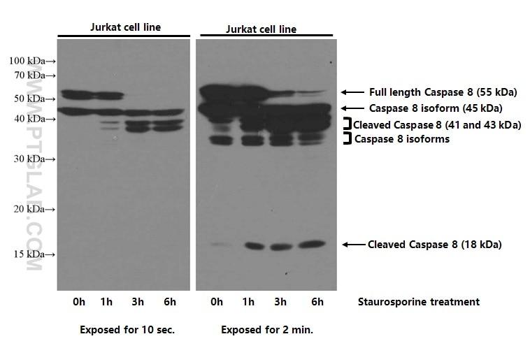 WB analysis of Jurkat using 66093-1-Ig