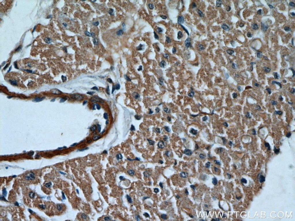 10380-1-AP;human heart tissue