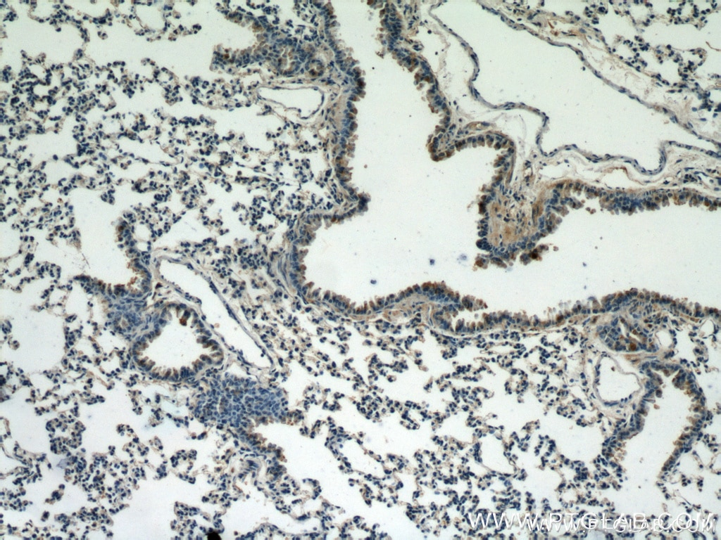 10380-1-AP;mouse lung tissue