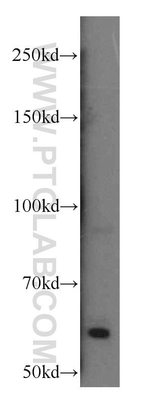 Calcium Sensing Receptor Polyclonal antibody