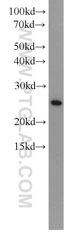CBP,EIF4E Polyclonal antibody
