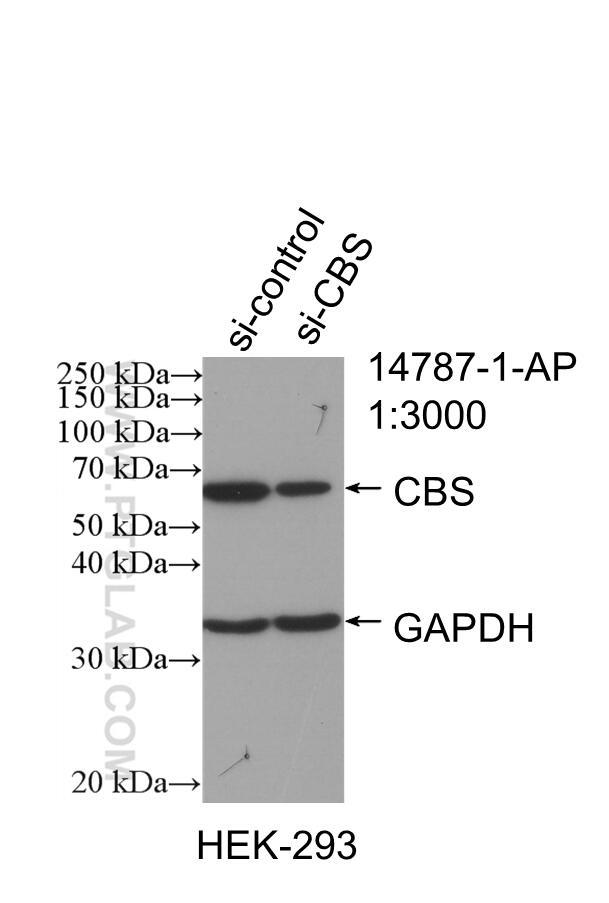 WB analysis of HEK-293 using 14787-1-AP