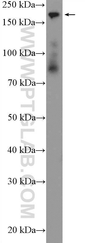 WB analysis of fetal human brain using 22293-1-AP