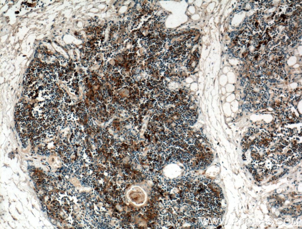 IHC staining of human thymus using 25285-1-AP