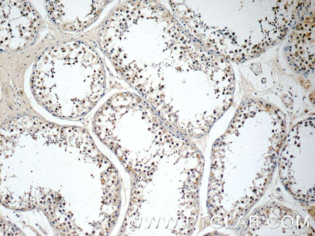 IHC staining of human testis using 22301-1-AP