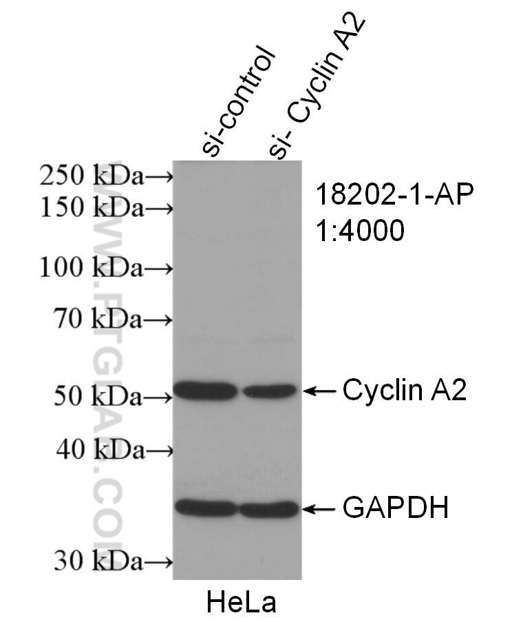 WB analysis of HeLa using 18202-1-AP