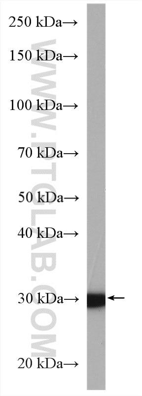 WB analysis of MDA-MB-453s using 10897-1-AP