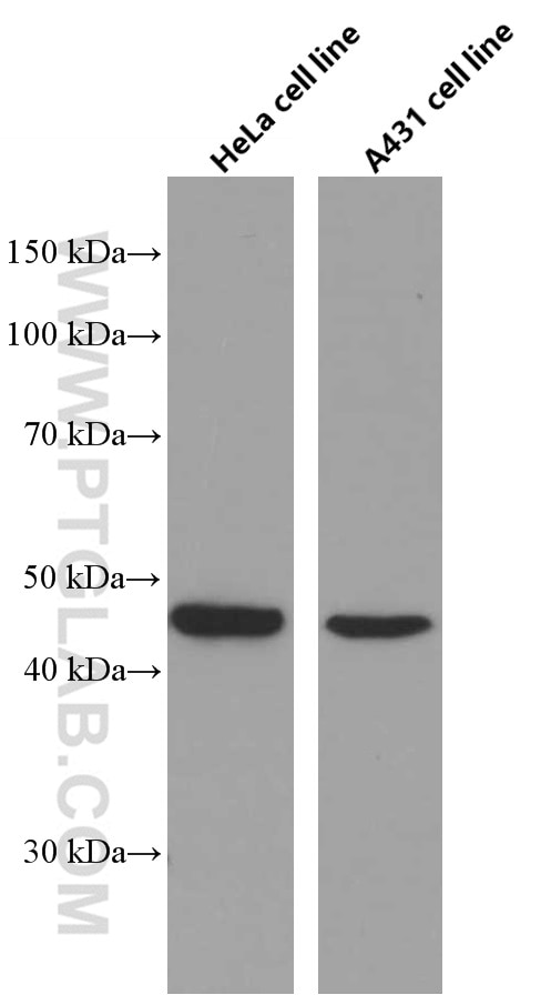 WB analysis of HeLa using 66611-1-Ig