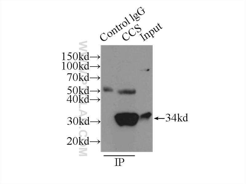 IP experiment of HepG2 using 22802-1-AP