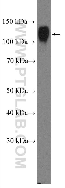 WB analysis of U-937 using 21997-1-AP